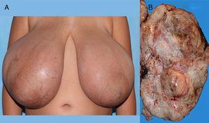 (A) Image of the abnormal breasts. (B) Gross appearance of the surgical specimen.
