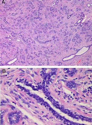 (A) Histological examination in case 3. Fibroepithelial proliferation with areas of pericanalicular and intracanalicular growth. No evidence of marked stromal growth, fat infiltration or cleft-like spaces. (B) Detail of Fig. 2A (H&E stain, 4×), showing a mildly hyperplastic epithelium and a stroma without cytological atypia or mitotic activity.