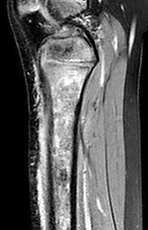 MRI of the lower extremity. Sagittal proton density-weighted fat saturated image shows heterogeneous hyperintensity of the bone marrow and soft tissues in the anterior part of the tibia due to edema and inflammatory changes.