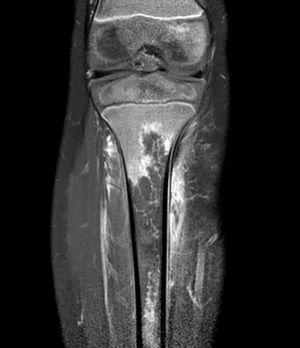 MRI of the lower extremity. Coronal T1-weighted fat saturated post-gadolinium image showing an irregular geographic area of no enhancement in the proximal metaphysis and diaphysis of the tibia due to a large bone infarct.
