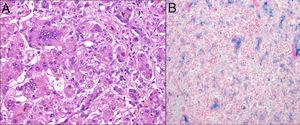 (A) Haematoxylin–eosin stain. Giant cell hepatitis with extensive fibrosis and cholestasis. (B) Perls' Prussian blue. Iron deposition in the liver.