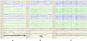 Changes in EEG patterns. Example of portions of an EEG recording during naptime in a patient while awake (a), in REM sleep (b) and non-REM sleep (c). Presence of synchronic and continuous spike and wave discharges on both hemispheres compatible with CSWS during non-REM sleep. The horizontal line drawn at the bottom shows the length equivalent to 1s. EEG machine settings: sensitivity 10μV/mm; HF 70Hz; TC 0.3.