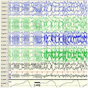 Seizure during CSWS. Tracings showing an episode compatible with an epileptic seizure with a change in the pattern, which is replaced by bilateral spike-wave discharges that are more irregular compared to the previously recorded pattern, suggesting that CSWS is an interseizure pattern that is altered by the development of epileptic seizures. From a clinical standpoint, the seizure manifested with repetitive blinking and jerking movements of the peribuccal muscles. The horizontal line drawn at the bottom shows the length equivalent to 1 second. EEG machine settings: sensitivity 10μV/mm; HF 70Hz; TC 0.3.