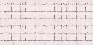 Electrocardiogram of case 1.