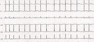 Electrocardiogram of case 2.