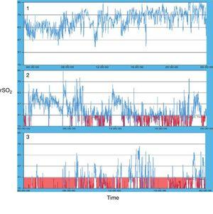 Types of oximetry patterns observed during 24-h monitoring in the patients under study.