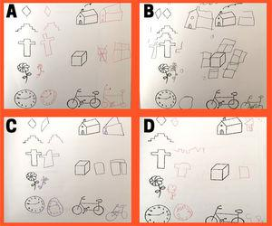 Assessment of graphomotor skills through drawing. Pascual graphomotor test. A) Age 7 years. Test score: 100. Normal neurodevelopment, no ADHD. B) Age 6 years. Test score: 127. No neurologic impairment. High level for age. C) Age 7 years. Test score: 74. Neurologic impairment, no ADHD. D) Age 6 years. Test score: 66. Neurologic impairment, ADHD. ADHD, attention-deficit hyperactivity disorder.