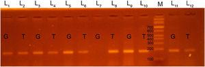 Polymerase chain reaction (PCR-ARMS) products of amplification of the EDN1 rs5370 locus, with identification of the GT genotype (lanes 1–6, 9–12) and the TT genotype (lanes 7, 8); lane M corresponds to the DNA marker.