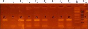 Polymerase chain reaction (PCR-ARMS) products of amplification of the EDN1 rs5370 locus, with identification of the GT genotype (lanes 3–6, 9, 10) and the GG genotype (lanes 1, 2, 7, 8); lane M corresponds to the DNA marker.
