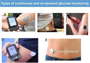 Types of continuous and on-demand glucose monitoring: Dexcom system, Novalab (A); Guardian system, Medtronic (B); Eversense system, Roche (C); FreeStyle system, Abbott (D); iPro blinded monitoring system, Medtronic (E).