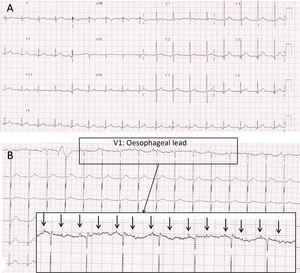 """(A) Electrocardiogram recorded in the PICU at 24h from admission. Narrow complex bradycardia with suspected high-grade atrioventricular block with 2:1 conduction. Blocked P waves """"buried"""" in the T wave of the preceding heartbeat are difficult to discern. (B) Electrocardiogram with oesophageal probe (lead V1) recorded immediately following the one shown in Fig. 1A. Features consistent with high-grade 2:1 atrioventricular (AV) block. Atria (arrows) and ventricular activity seem dissociated, as the AV interval changes from beat to beat. Note: Since neonatal oesophageal electrodes were not available, we fitted an oesophageal lead as follows: we inserted a gastric tube previously rinsed with physiological saline, which served as the conductor, and without entirely removing the guide wire we connected it to the ECG lead and to the monitor. We slowly pulled the tube up towards the oesophagus while watching the ECG tracings to the point that atrial activity was detectable with the highest possible amplitude. The oesophageal tracings allow observation of amplified atrial activity and to analyse it independently from the QRS complex. This is very useful in the diagnosis of certain forms of supraventricular tachycardia or in case of conduction disorders when the AV conduction ratio is not clear in the surface ECG."""