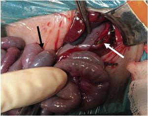 Gastric perforation. The nasogastric tube (white arrow) could be seen through the gastric perforation on the greater curvature in a patient with meconium ileus (black arrow).