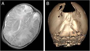 A) Infarction in both parietal lobes. B) Bilambdoid synostosis associated with foramina parietalia permagna.