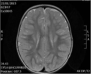 Changes in white matter at age 2 years, patient 1.