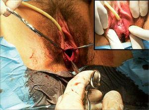 Tratamento cirúrgico de hímen imperfurado (sangue viscoso, castanho tipo chocolate - em cima e à direita).
