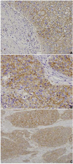 CD147, MCT1 and MCT4 immunoexpressions in urothelial bladder carcinoma. Muscle-invasive tumours exhibiting cytoplasmic and membrane immunoexpression of CD147 (A, ×200 amplification), MCT1 (B, ×200 amplification) and MCT4 (C, ×100 amplification) in the malignant urothelium, with negative stromas (adapted from Afonso et al.71).