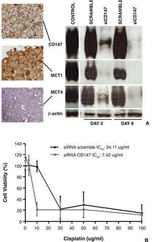 Effect of CD147 downregulation in HT1375 cell line on the expression of MCTs and on chemosensitivity to cisplatin (treatment with cisplatin between days 5 and 8 after reverse transfection). A, CD147, MCT1 and MCT4 immunoexpressions in HT1376 control cells, and Western blot analysis of CD147, MCT1 and MCT4 expressions in control/scramble HT1376 cells and in siCD147 HT1376 cells, showing that CD147 silencing was accompanied by a decrease in MCT1 and MCT4 expressions. B, effect of cisplatin on the viability of scramble and siCD147HT1376 cells, as detected by the MTS assay after 72 hours of treatment, showing that siCD147 cells were more sensitive to cisplatin (adapted from Afonso et al.71).