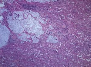 Infiltration of the renal parenchyma by mucinous adenocarcinoma. (Hematoxylin-eosin, 40×).