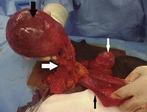 Appearance of the structures inside the right scrotum of the patient during the surgery; inside the right scrotum the patient had a healthy right testicle (thin white arrow) and spermatic cord together with an indirect inguinal hernia which sac (thin black arrow) was surrounding the big mass (thick black arrow); this mass was linked to the epiploon and splanchnic/mesenteric circulation (thick white arrow).