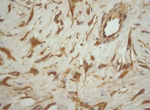 Immunohistochemical analysis showing that the neoplastic cells reacted positively with vimentin. (vimentin, ×40).