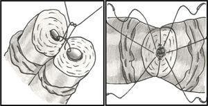 Técnica cirúrgica das 2 camadas: a sutura da mucosa é iniciada após a fixação do canal com 2‐3 pontos posteriores da camada externa. Os 7‐9 pontos circulares da mucosa são passados: muscularis‐mucosa‐mucosa‐muscularis, e atados sequencialmente no fim.