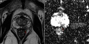 Example of ROI placement. Left peripheral prostate cancer in a 67-year-old man (PSA 9.5ng/mL&#59; Gleason Score of 8). (A) Axial T2-weighted MR image shows a left peripheral hypointense tumor (arrow). (B) ADC map reveals left suspicious hyposignal lesion and ROI placement (arrow).