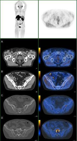 Doente com CaP com PSA de 11ng/mL, com doença prostática (A), metástase ganglionar pré‐sagrada com 4mm (B) e metástases ósseas, no ilíaco esquerdo (C) e em S1 (D).