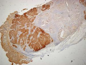 Immunohistochemical staining with synaptophysin (magnification 20×) showing diffuse positive staining by the neuroendocrine carcinoma component and negative staining by the adenocarcinoma component.