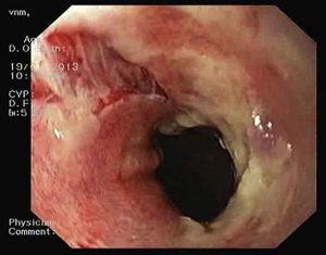 Mucosal ulceration and a vertical laceration with horizontal cracks were observed after removing mucosal sloughing that was occluding the esophageal lumen.