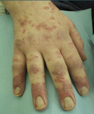 Hands of the patient with psoriatic-like eczema and arthritis.