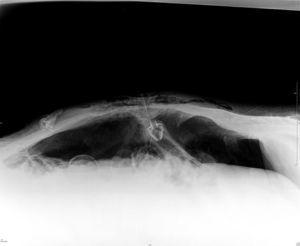 Abdominal plain radiography (supine position) demonstrated free air in the peritoneum and the internal bumper of the PEG tube in intraperitoneal location.