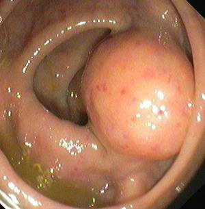 Colonoscopic findings showing subepithelial lesion with normal overlying mucosa.