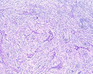 Histological examination revealed spindle cells arranged in bundles, with dense distribution of nucleus forming palisades in dense fibrillar stroma (hematoxylin & eosin, 40×).