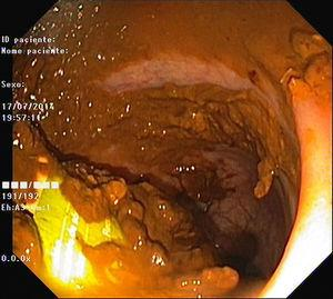 Endoscopic view of the microenema device in the rectum.