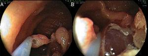 Large sessile polyps (>10mm) were removed using the piecemeal technique (A and B).