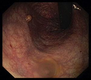 Colonoscopic view, in retroflexed maneuver, showing in the lower rectum a polypoid, yellowish, well-circumscribed lesion, measuring 5mm compatible with a rectal NET.