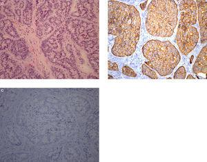 Neuroendocrine tumor. Higher magnification showing monomorphic cells containing small, round nuclei and eosinophilic cytoplasm (a: H&E 200×). In the immunohistochemical study the tumor cells stained for synaptophysin (b: 200×) without expression of chromogranin A (c: 200×).