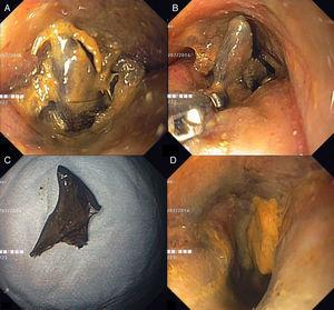 Endoscopic images showing a congestive rectal mucosa and a narrowed lumen with an impacted chicken bone occluding the luminal passage (A), which was removed with a rat-tooth forceps (B). After extraction of the foreign body (C), the malignant stricture was easily traversed and was only causing a minor narrowing of the lumen (D).