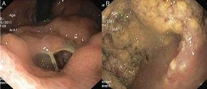 The orifice in the gastric body (A) allowing the passage of the endoscope to a cavity filled with necrotic debris (B).