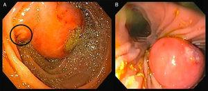 (A) Upper endoscopy; (B) duodenoscopy: 25mm large subepithelial lesion, distal to the duodenal papilla (black circle in A), with ulcerated top.
