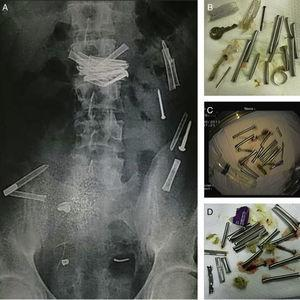 Twenty-nine year-old prisoner male admitted for voluntary ingestion of multiple metallic foreign bodies. Before endoscopic intervention (A), abdominal radiograph shows multiple metallic objects scattered throughout the gastrointestinal tract. After endoscopic retrieval (B–D): multiple screws, nails, keys, finger ring, pieces of a metallic TV antenna and razor blades were retrieved. Patient was discharged with uneventful outcome.
