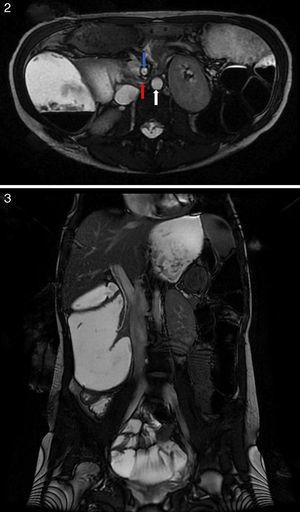 Abdominal magnetic resonance imaging showing compression of the duodenum between the aorta and the superior mesenteric artery.