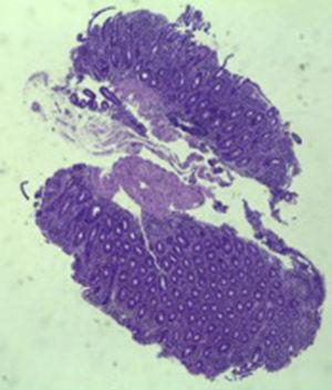 Small intestinal biopsy showing villous atrophy and chronic lymphocytic infiltration of the lamina propria (hematoxylin and eosin, 4×).