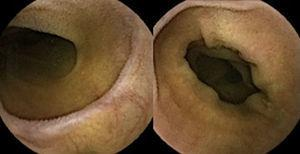 Capsule endoscopy showing marked villous atrophy of the small bowel.