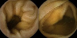 Follow-up capsule endoscopy showing normal small bowel appearance.