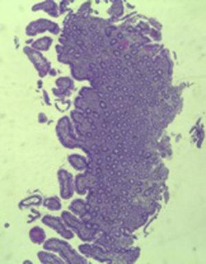 Histopathological image showing almost complete recovery of duodenal villi three months after discontinuing olmesartan (hematoxylin and eosin, 4×).