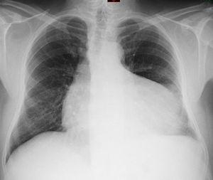 Chest radiograph.