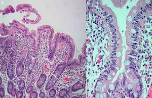 Small intestinal histological examination showing severe attenuated villi (A) with lymphoplasmmacytic inflammatory infiltrate in lamina propria and surface intraepithelial lymphocytosis (B) (HE, 400×).