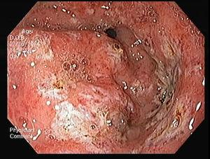 Gastric antral vascular ectasia – after APC treatment.