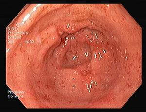Gastric antral vascular ectasia – after EBL treatment (4 sessions).